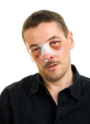 Перелом носа симптомы лечение и последствия
